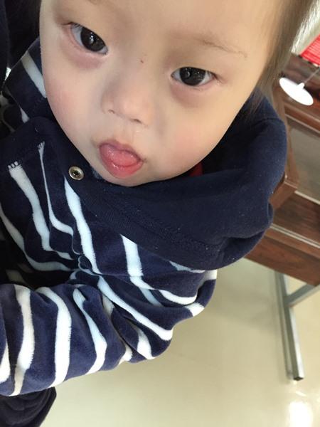 ダウン症,1歳半診断,身長,体重,歯科検診