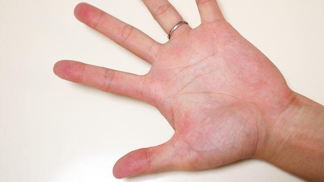 手相,升掛線,ますかけ,小指,関節,結婚線,ダウン症,ブログ